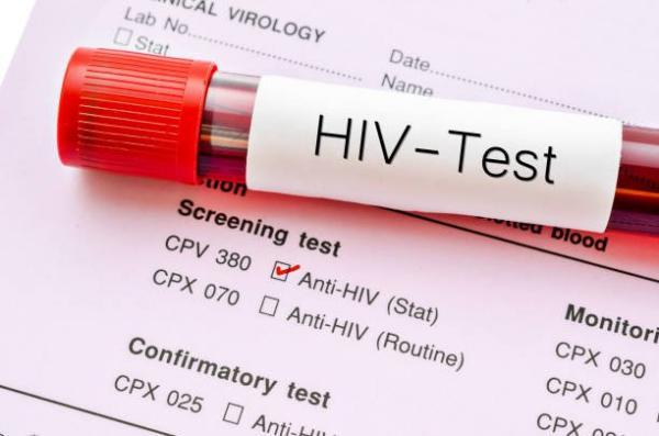 3 trường hợp phải xét nghiệm tải lượng HIV