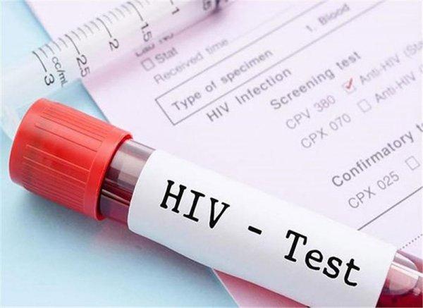 Cấm cung cấp thông tin giả khi dùng dịch vụ phòng, chống HIV/AIDS